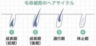 rayclinica メンズ用パーソナルレーザー脱毛器 [出力レベル5段階] i-epihomme(アイ・エピオム) i-epi homme
