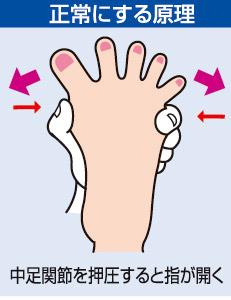 外反母趾でゆるんだ中足関節をサポート!
