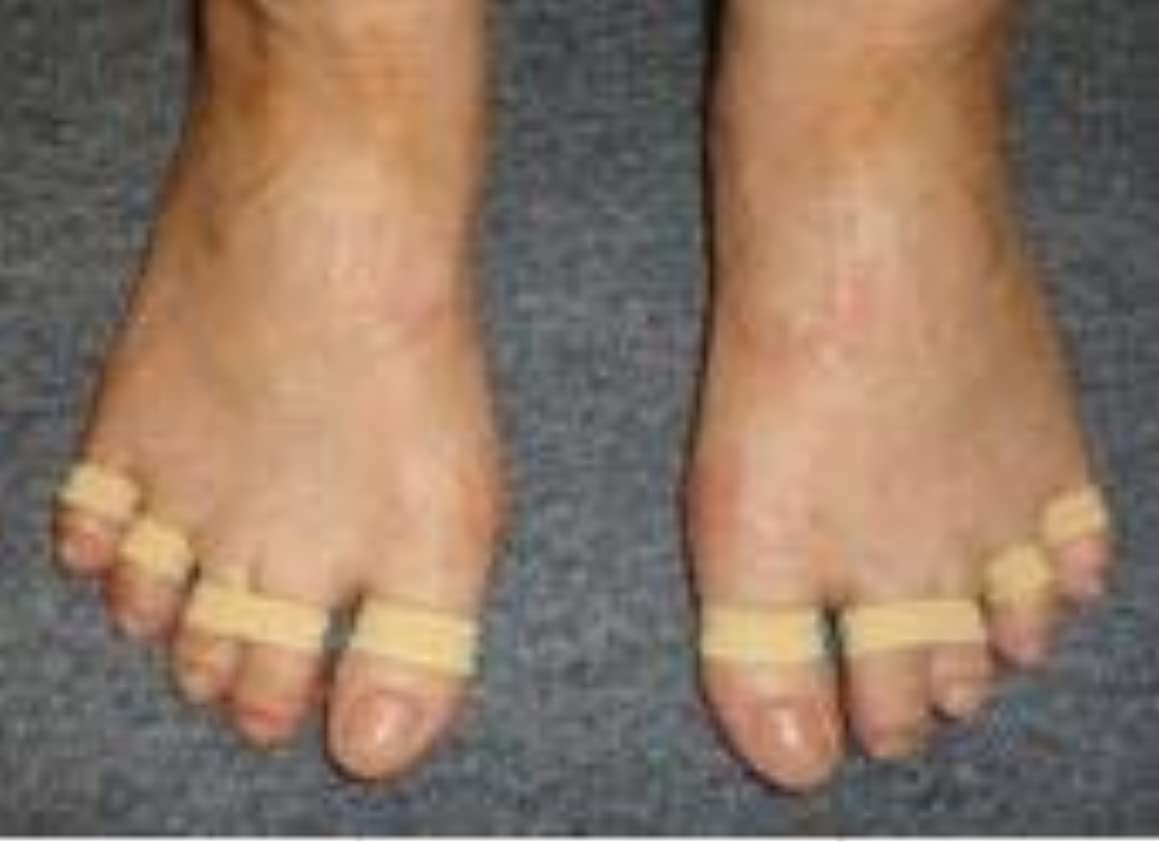 ヘルパー葉テレマコス足ゆびバランスパッド(第2?3母趾用)85