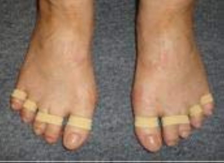 台風プリーツ成長する足ゆびバランスパッド(第5趾小指用)50