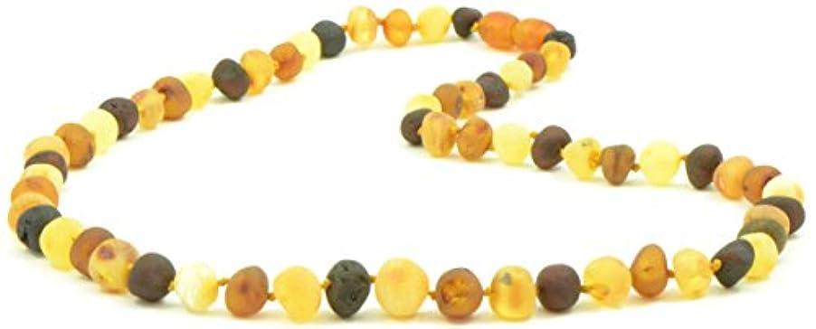 リフトリハーサルご飯Raw Amberネックレス大人用 – 18 – 21.6インチ – amberjewelry – Madeから未研磨/Authentic Baltic Amberビーズ 19.7 inches (50 cm)