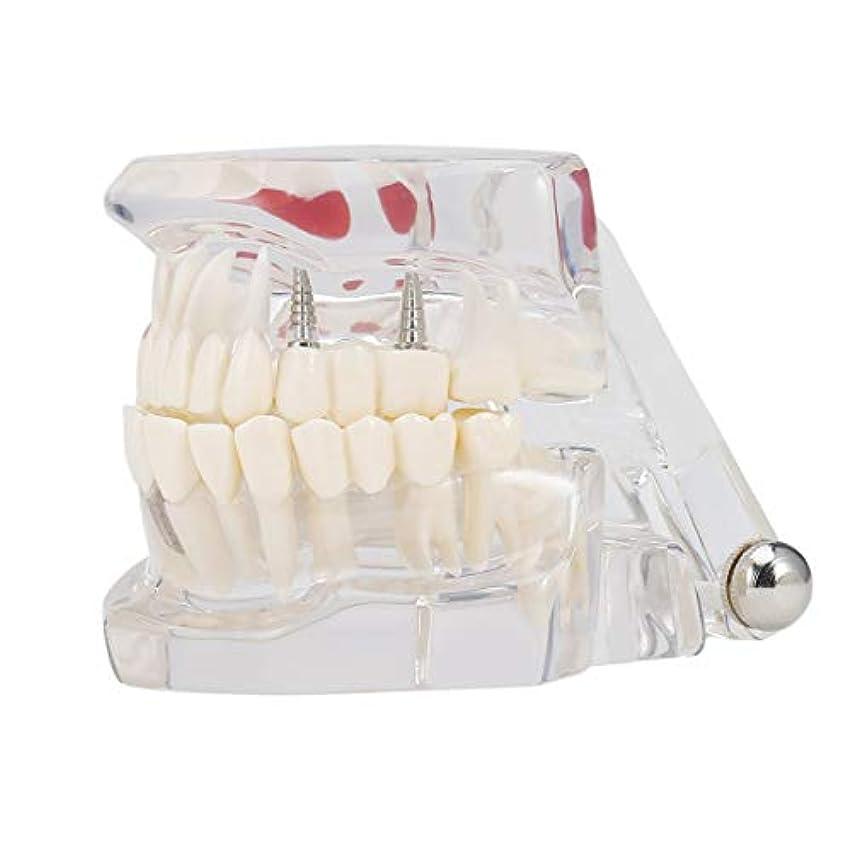 専門の取り外し可能な偽の歯の歯の病気のモルデルの歯科インプラント回復表示医院の病院の教育使用 (色:黒) (PandaW)