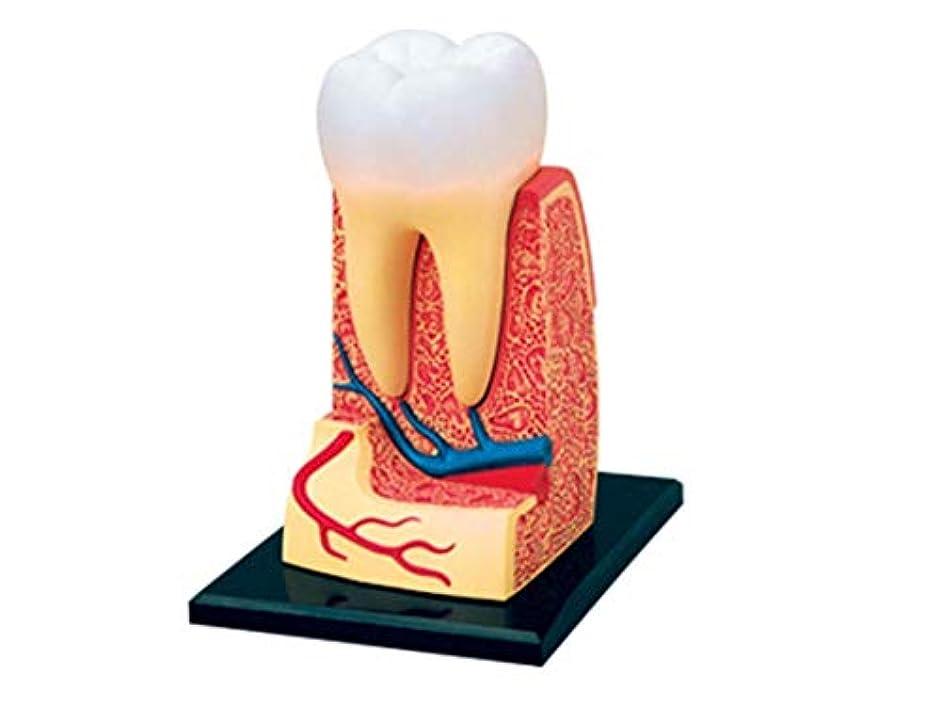 鳥アシスタントダース教育モデル人間の歯の解剖学的モデル、取り外し可能な臓器アセンブリモデル医療用教育玩具、成人の病理学研究インプラントのデモに適しています