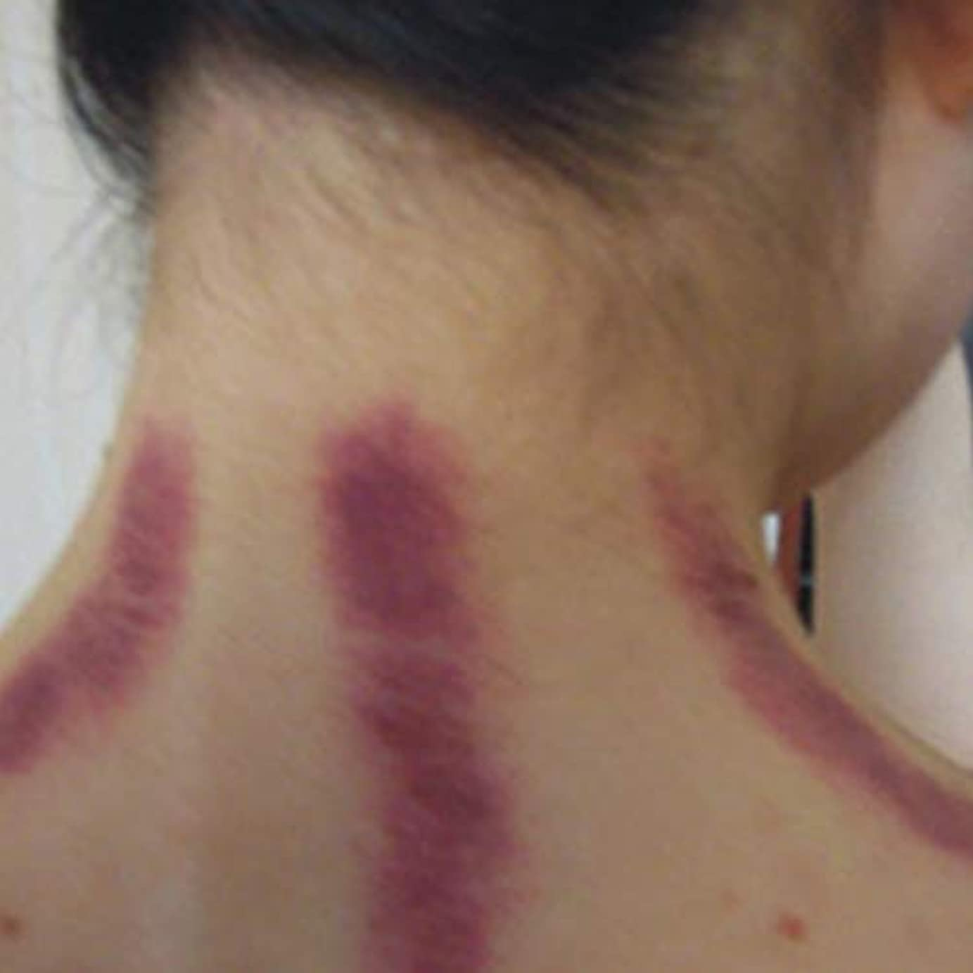 バックアップまろやかなホールドCompact Size Gua Sha Facial Treatment Massage Tool Imitation horn scraping