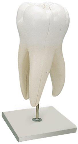 上顎大臼歯(3根),15倍大・6分解ジャイアントモデル