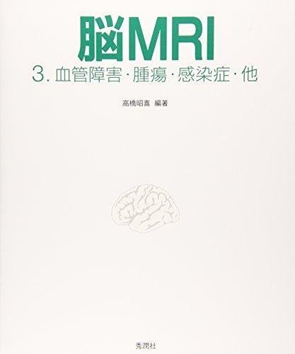 脳MRI〈3〉血管障害・腫瘍・感染症・他の詳細を見る