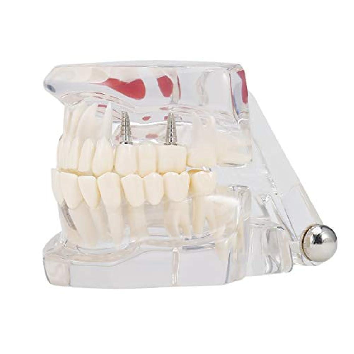 注釈船員鮮やかな専門の取り外し可能な偽の歯の歯の病気のモルデルの歯科インプラント回復表示医院の病院の教育使用 (色:黒)(Rustle666)