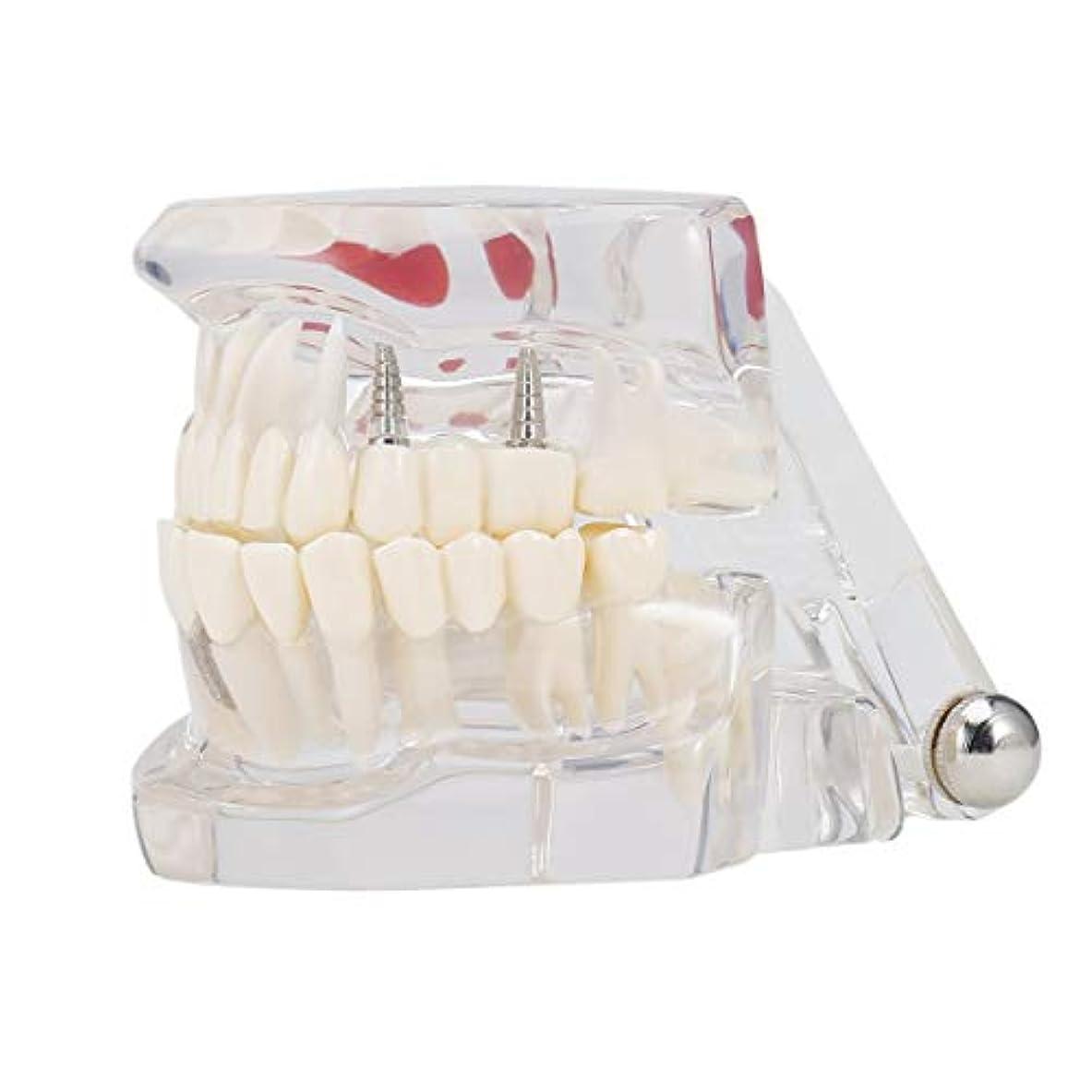 チキン加害者強化専門の取り外し可能な偽の歯の歯の病気のモルデルの歯科インプラント回復表示医院の病院の教育使用 (色:黒)(Rustle666)