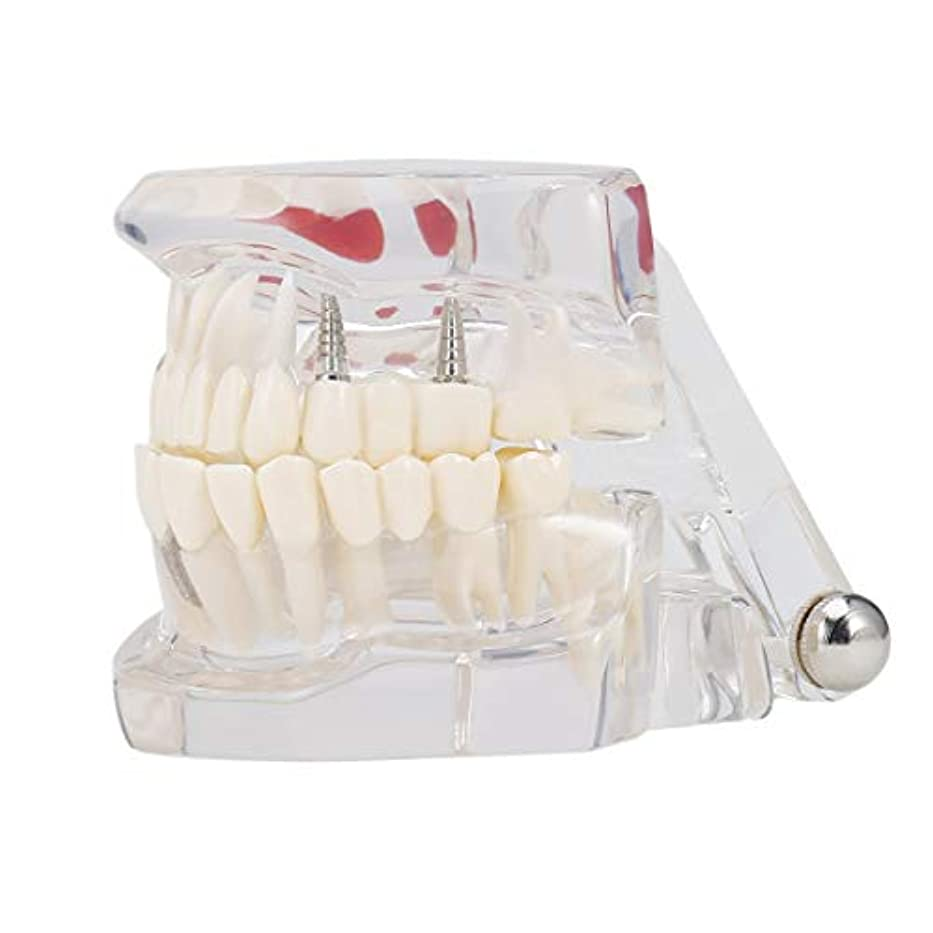 スティーブンソン妻わかる専門の取り外し可能な偽の歯の歯の病気のモルデルの歯科インプラント回復表示医院の病院の教育使用 (色:黒)(Rustle666)