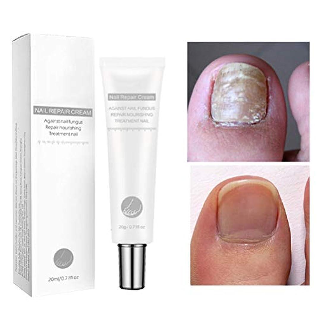 活気づくのスコア近似BSMEAN 20g爪真菌治療、抗真菌爪治療、抗真菌性足指爪および爪液、抗真菌爪液
