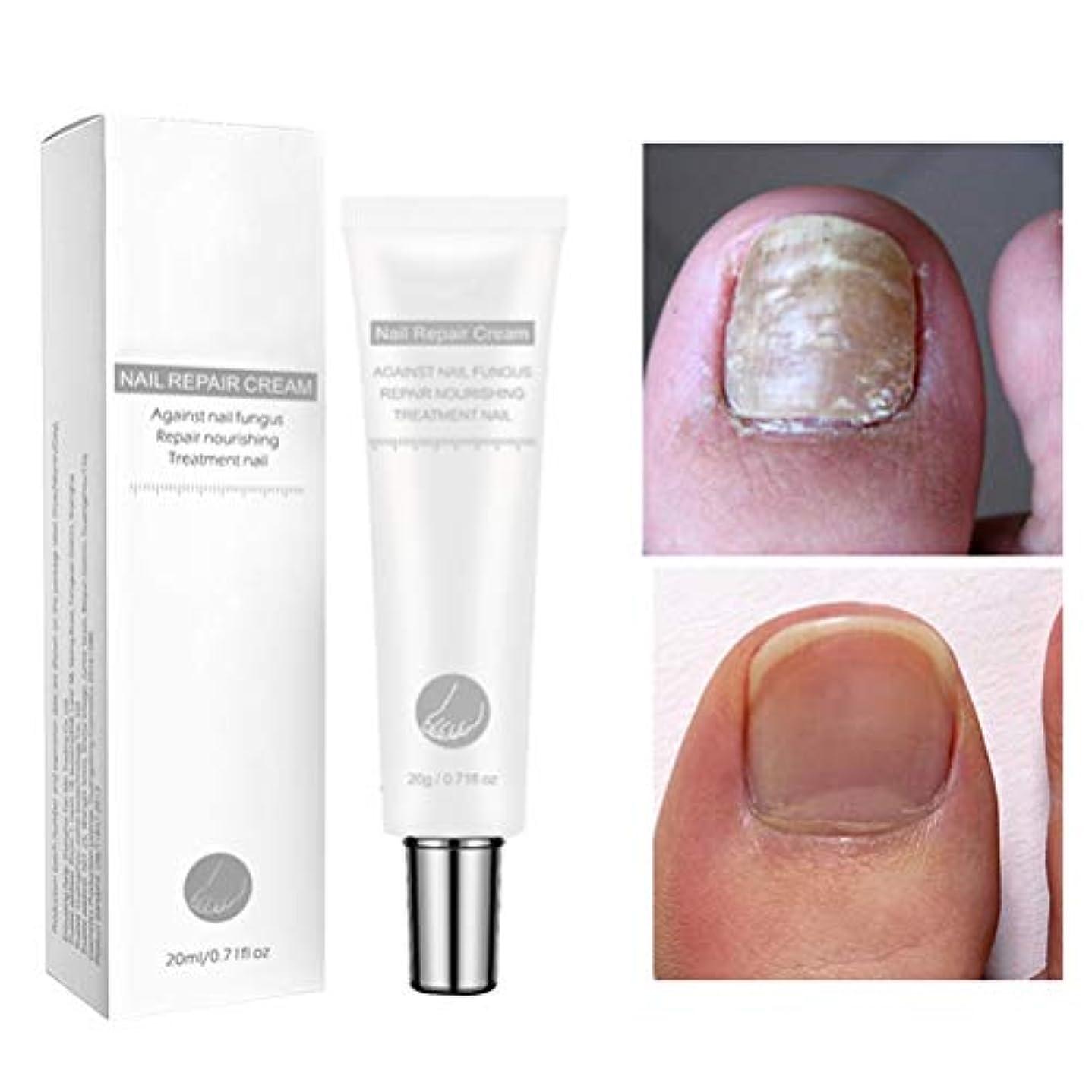 息を切らして逆に侵入するBSMEAN 20g爪真菌治療、抗真菌爪治療、抗真菌性足指爪および爪液、抗真菌爪液