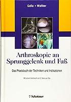 Arthroskopie an Sprunggelenk und Fuss: Das Praxisbuch der Techniken und Indikationen