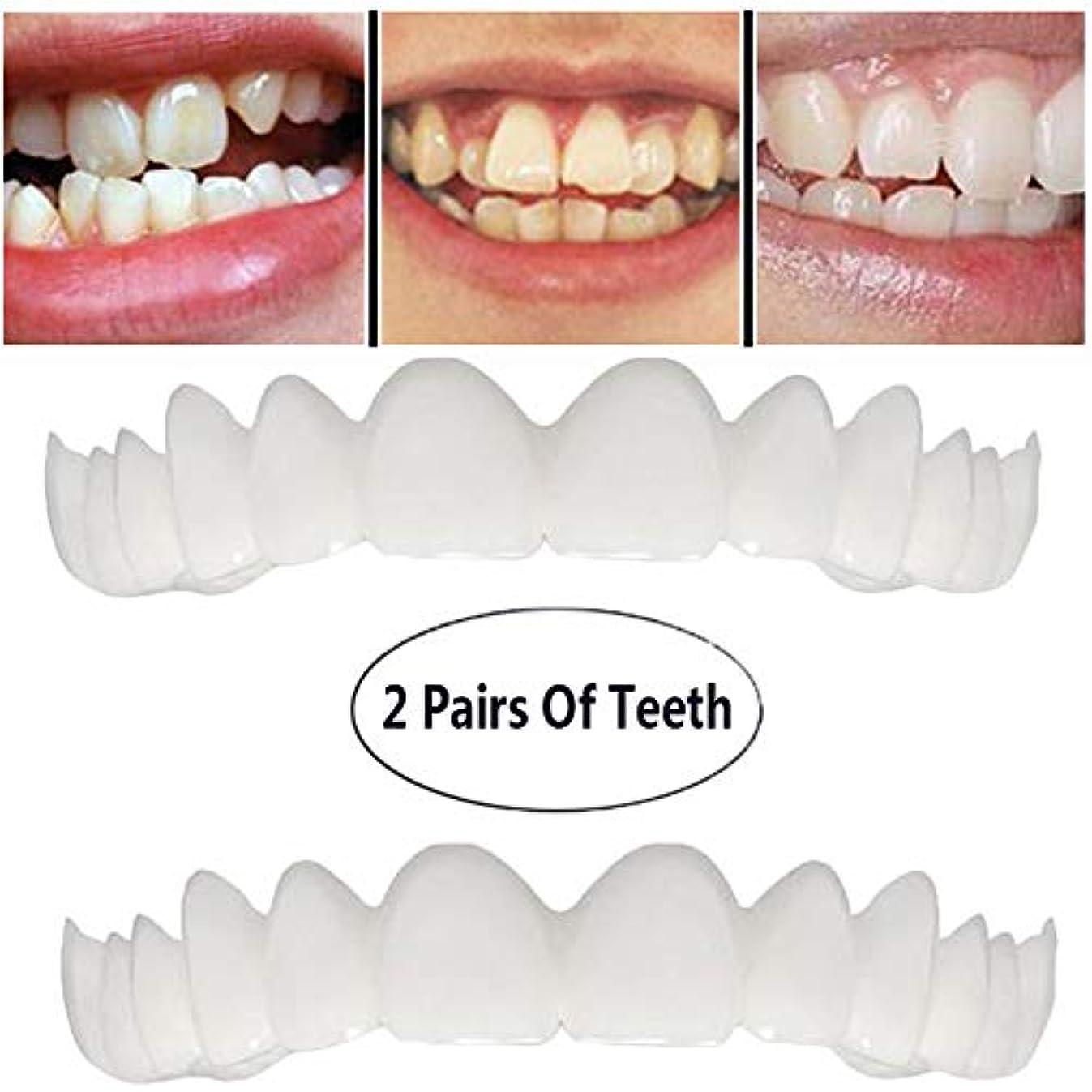 自発的新しさ不安定歯を白くする歯の2組は、柔軟な歯突き板+下括弧のために快適な完璧な笑顔をカバー