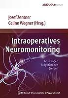 Intraoperatives Neuromonitoring: Grundlagen, Moeglichkeiten, Grenzen