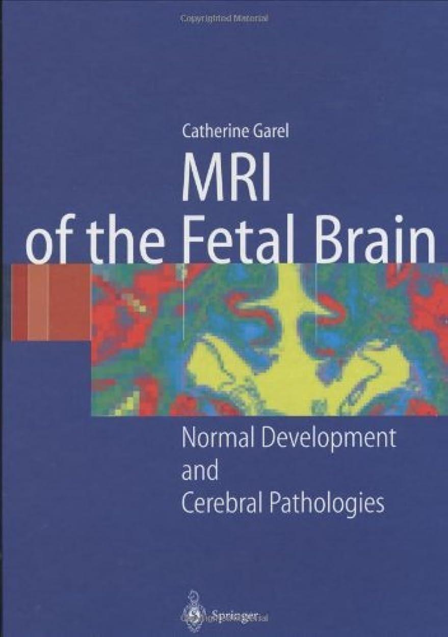 なぜなら電気的ジョージバーナードMRI of the Fetal Brain: Normal Development and Cerebral Pathologies (English Edition)