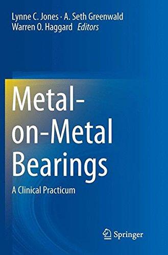 Metal-on-Metal Bearings: A Clinical Practicum