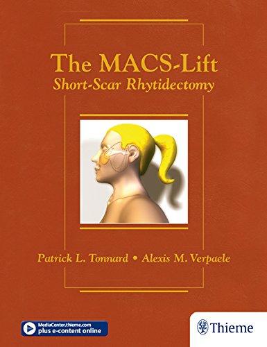 The MACS-Lift: Short-Scar Rhytidectomy (English Edition)