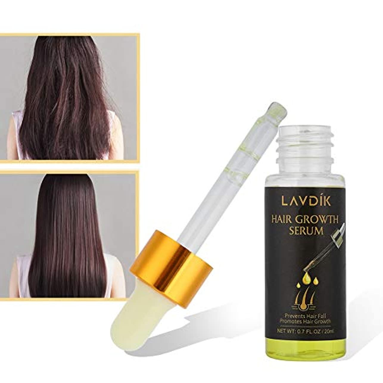 回答いつでも高揚した20ml ヘアケアエッセンシャルオイル 速い髪の成長、抗脱毛症 - 栄養価の高い滑らかで健康的で強いヘアオイルの修理