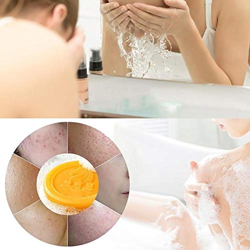 風刺粒子ロマンチックオイルコントロールソープ、100gウマオイル保湿石鹸ダニ除去クレンジングオイルコントロールソープ
