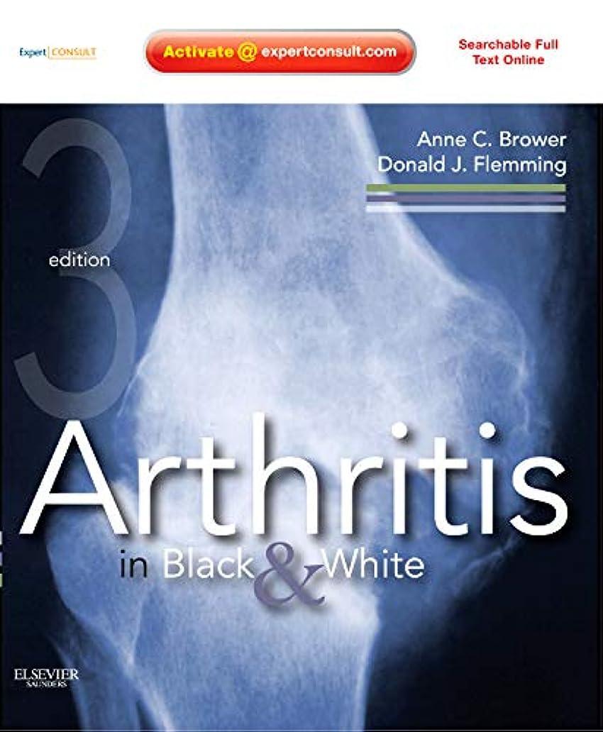 希少性保証金気味の悪いArthritis in Black and White: Expert Consult - Online and Print, 3e