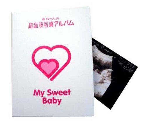 ディンドン 超音波写真アルバムMy Sweet Baby 20ポケット 白 0004