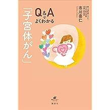 Q&Aでよくわかる「子宮体がん」 (健康ライブラリー)