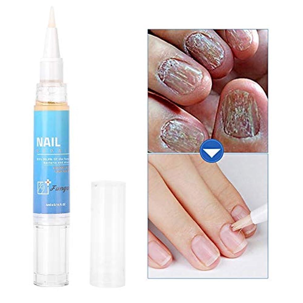 疫病欠点家ネイルケアクリーム 植物抽出物 副作用なし爪の代謝を促進 新しい爪の成長を促進