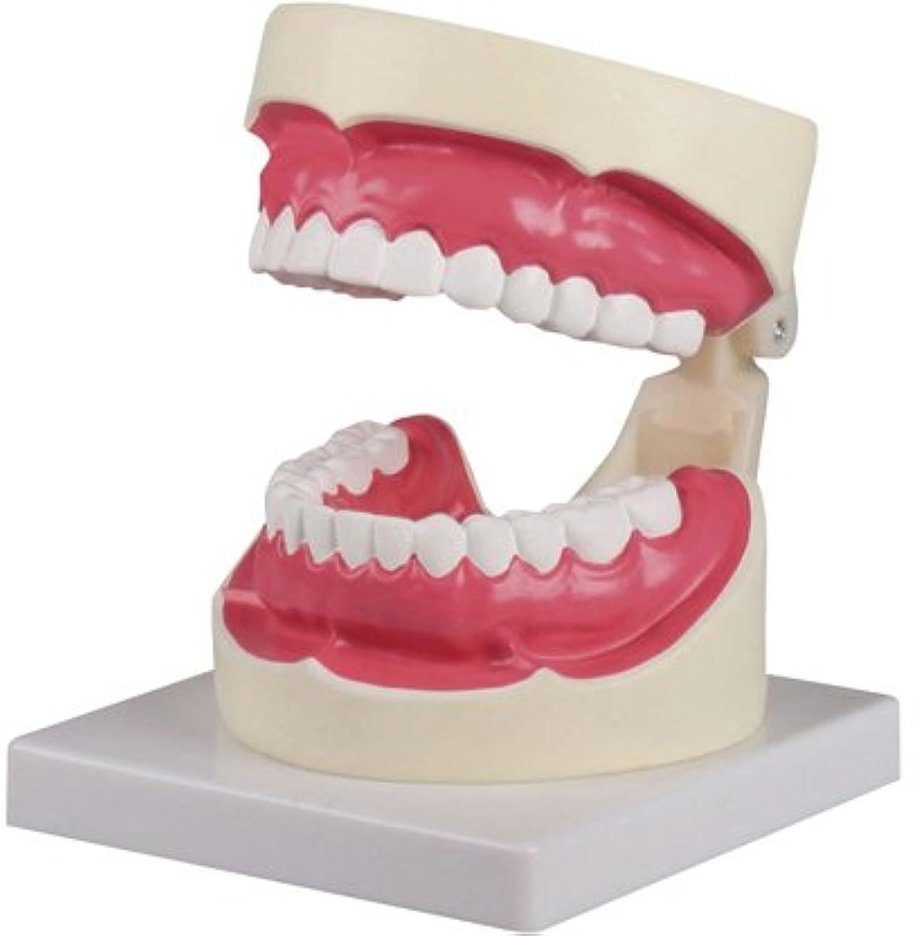 ドラフト宙返り廃止する歯磨き(口腔ケア)指導模型1.5倍大 D217 ?????(??????)???????(24-6839-00)【エルラージーマー社】[1個単位]
