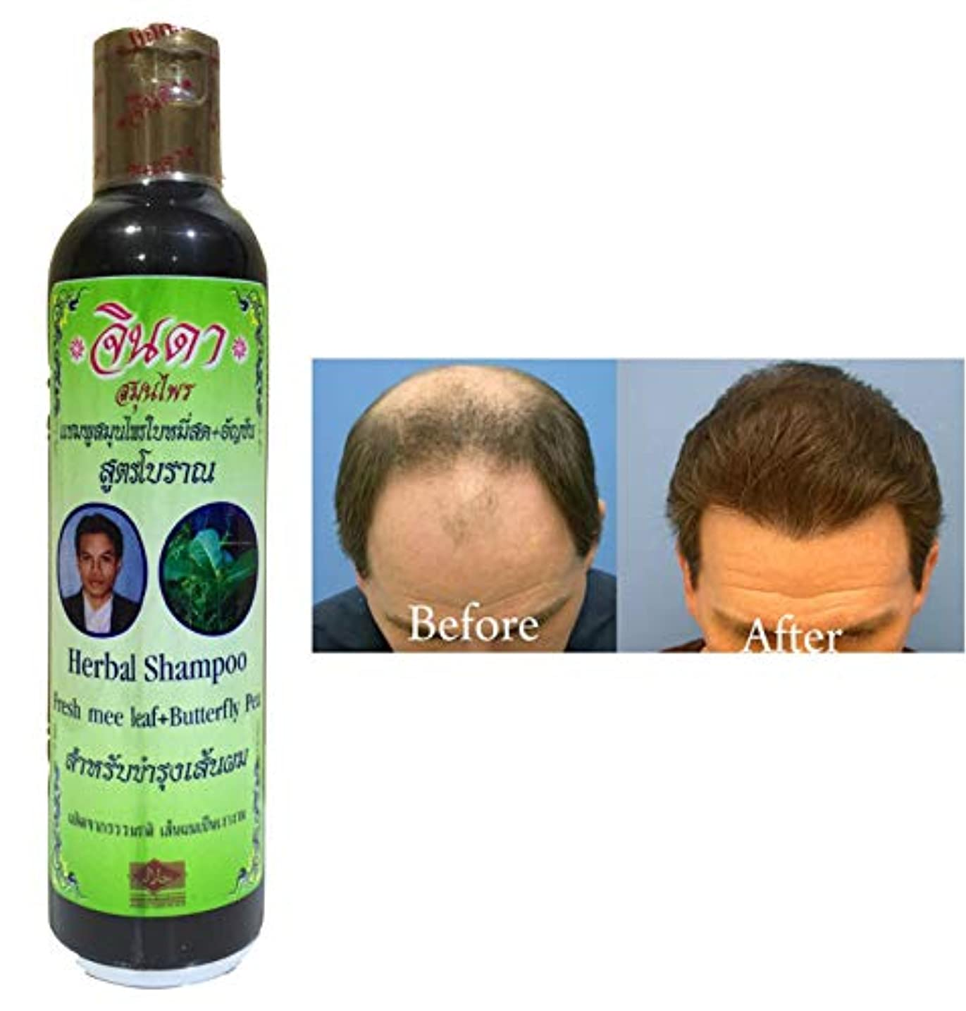 失業者ペネロペアーチNEW CHOICE: Jinda Herbal shampoo anti hair fall for men 250 ml.(fresh mee leaf+butterfly pea) Good products in...