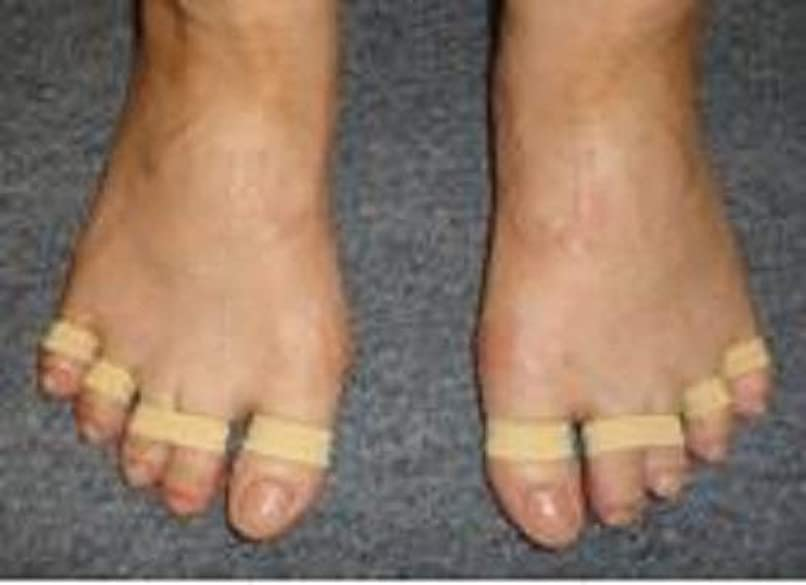 見物人蒸留する順応性足ゆびバランスパッド(第1趾親指用)85