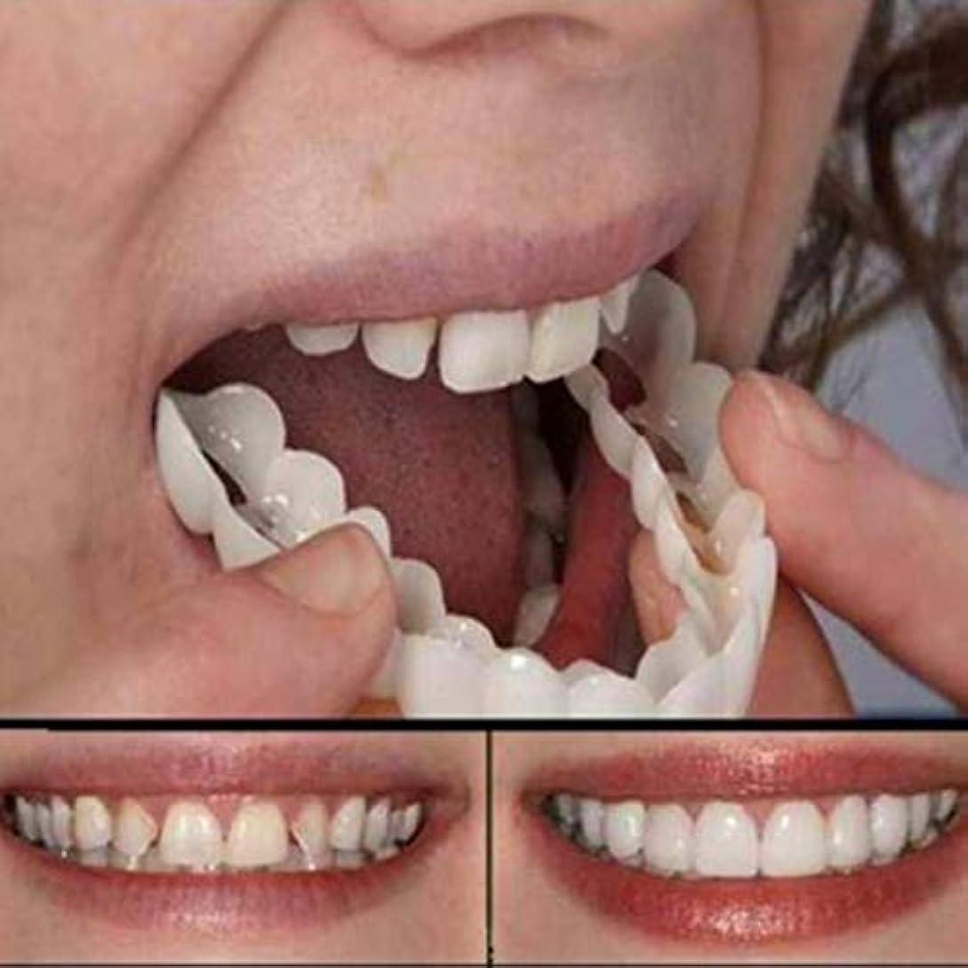日記強いターミナルホワイトニング入れ歯のシリコーンシミュレーション上段の8セットは入れ歯を再利用することができます