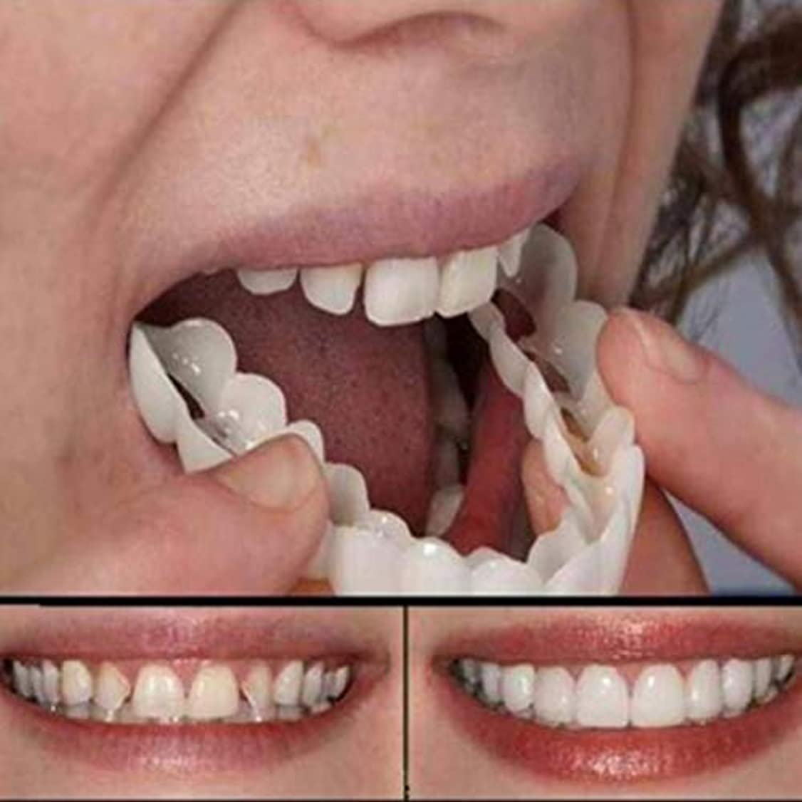 代理人比類なき水分ホワイトニング入れ歯のシリコーンシミュレーション上段の8セットは入れ歯を再利用することができます