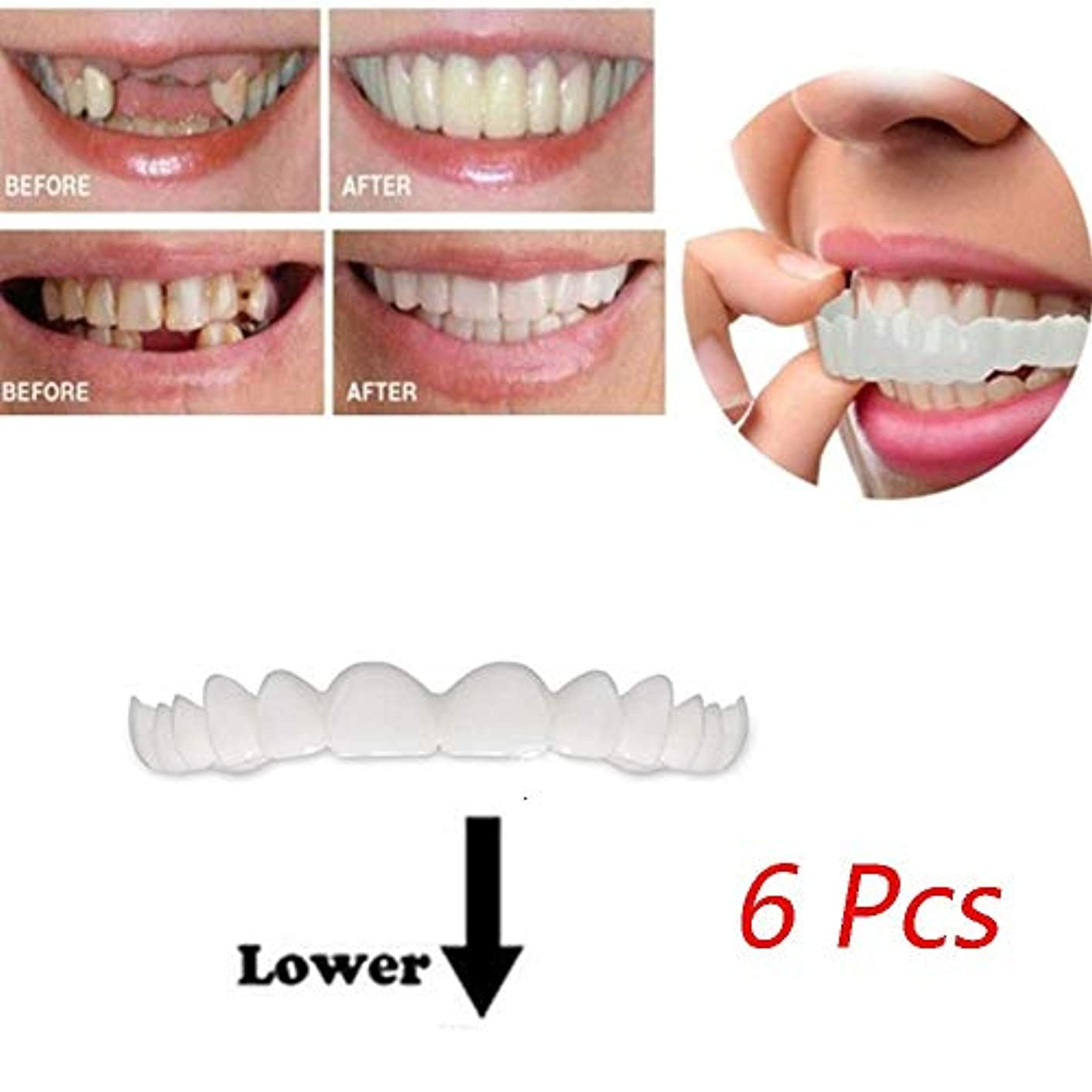 気付く受け取る原子新しいファッションシリコーンベニヤ歯6個インスタントパーフェクトスマイルコンフォートフレックス歯底化粧品突き板ワンサイズフィット(底)