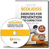 Scoliosis Exercises for Prevention and Correction