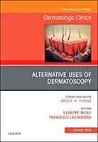 Alternative Uses of Dermatoscopy, An Issue of Dermatologic Clinics, 1e (The Clinics: Dermatology)