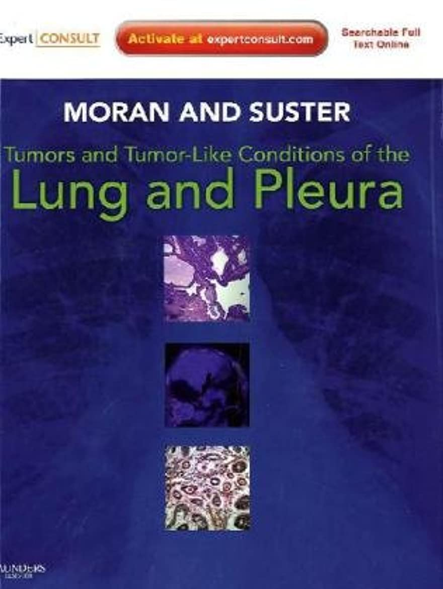 どのくらいの頻度で申し立て光のTumors and Tumor-like Conditions of the Lung and Pleura: Expert Consult: Online and Print, 1e