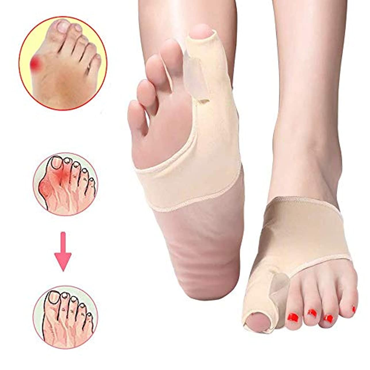 賢明なセッティング伝える1ペア親指外反母Correct腱膜瘤矯正足の親指矯正腱膜瘤パッドブレースクッションシリコーンゲルパッドスプリントサポートプロテクタースリーブデイナイトナイト(アプリコットカラー)