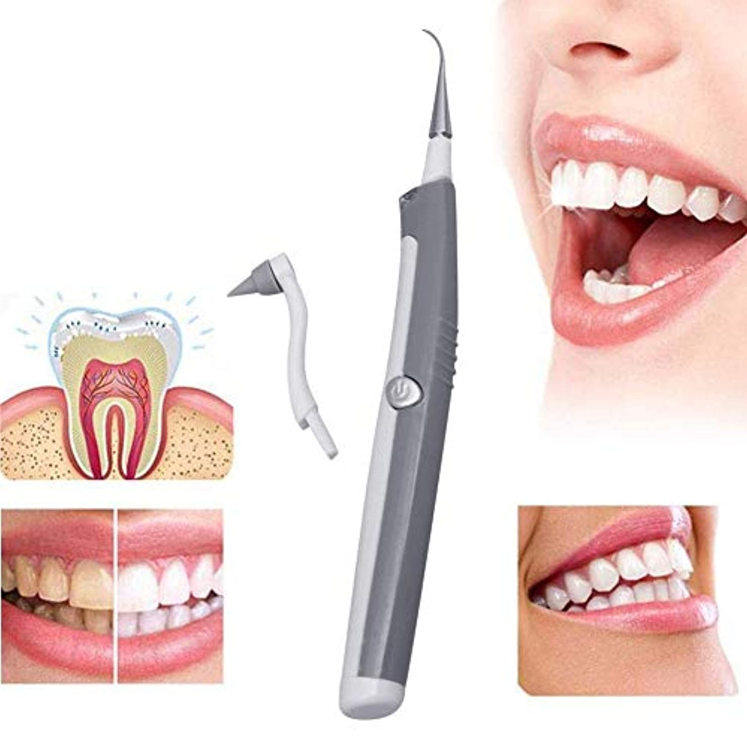政策抵抗力がある矢印振動歯ホワイトニングツール電動歯石マッサージ歯ホワイトニング歯科クリーニングスケーラ歯ツール