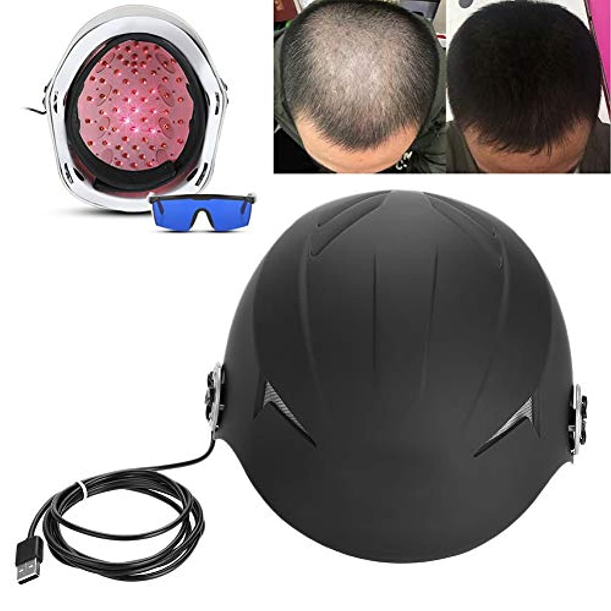 ヘアーレーザー育毛ヘルメット 68ダイオード育毛ヘルメット、速い成長治療のための赤外線育毛帽子そして抜け毛の問題を解決