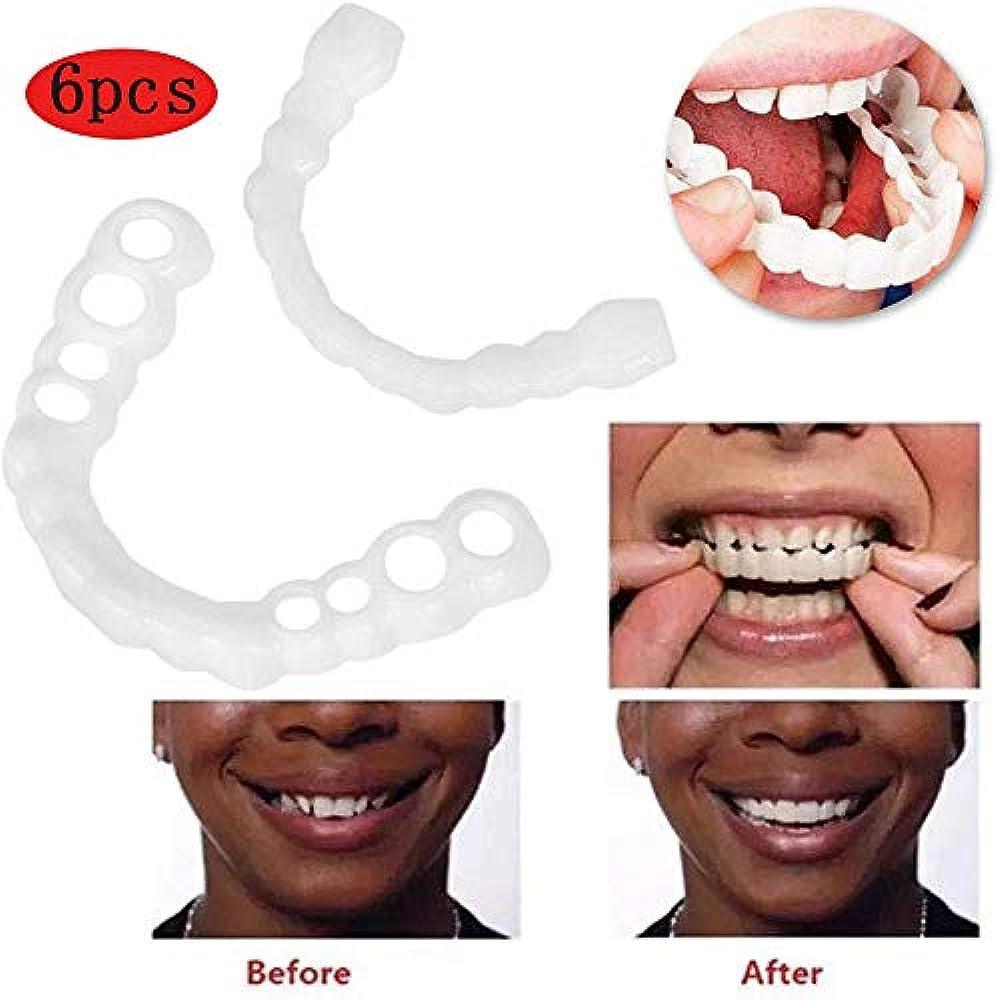 スピーチチェスシーンベニアは歯にスナップ、ZBHGFブレースベニアは義歯フェイク歯笑顔鋸歯状義歯上下コンフォートフィットフレックス歯ソケットは白い歯をきれいに整えます