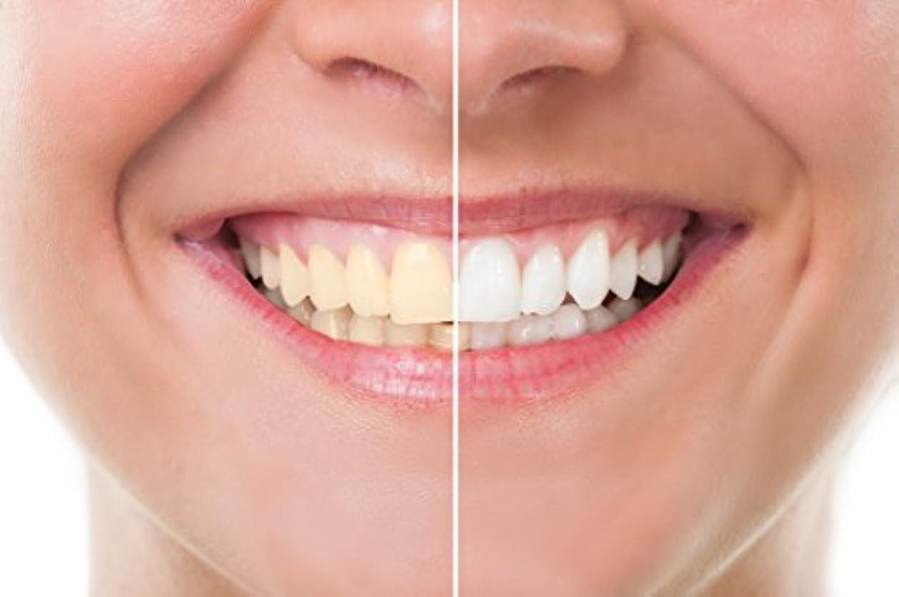アンプまとめる戻すTeeth Whitening 歯のホワイトニング