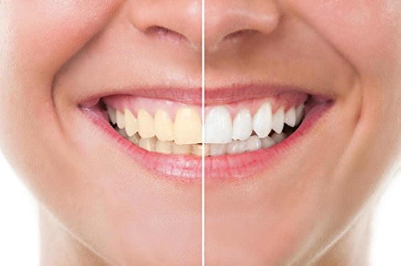 チップコンサート情熱Teeth Whitening 歯のホワイトニング