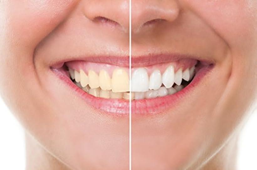 汚染された不利タオルTeeth Whitening 歯のホワイトニング