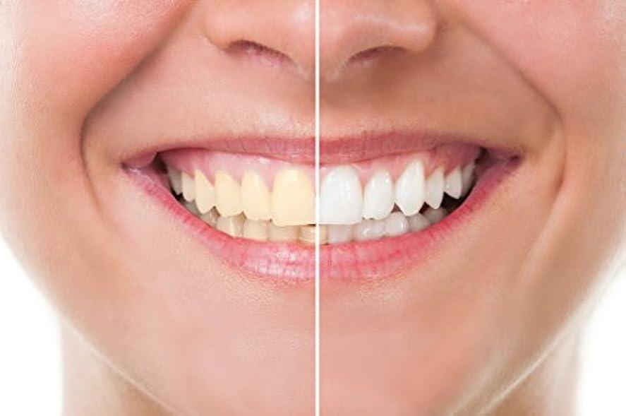 放棄意図する初期のTeeth Whitening 歯のホワイトニング