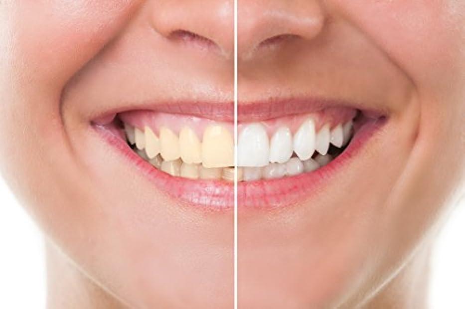 フィード照らすブランデーTeeth Whitening 歯のホワイトニング