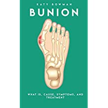 Bunion, What Is. Cause, Symptoms, And Treatment