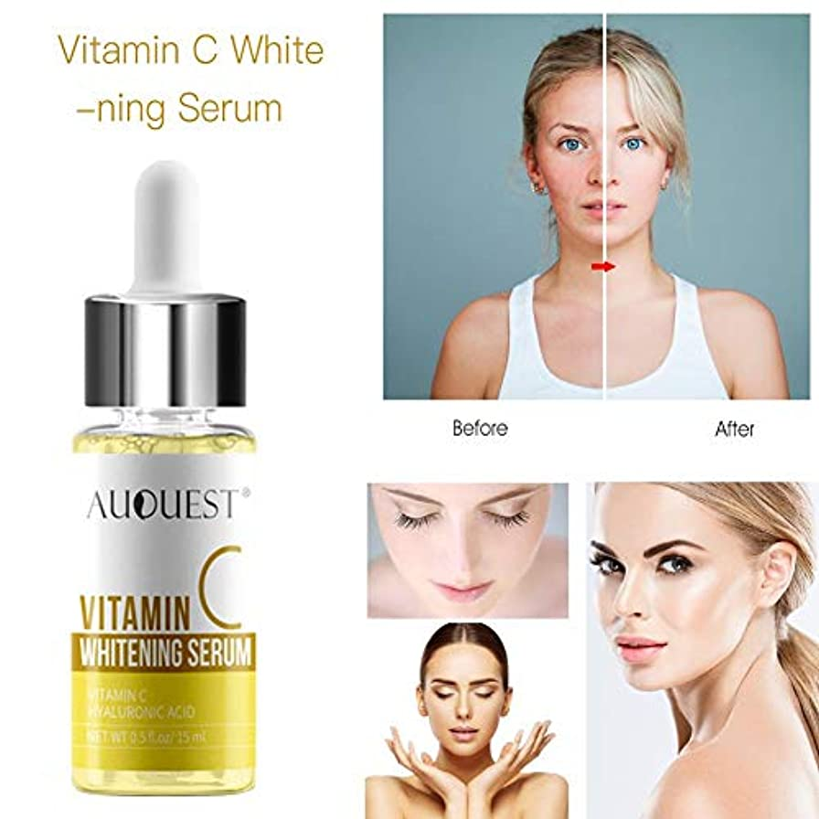 再発する気付く最高のビタミンCホワイトニングセラム除去そばかすの輝く保湿フェイスケアエッセンス