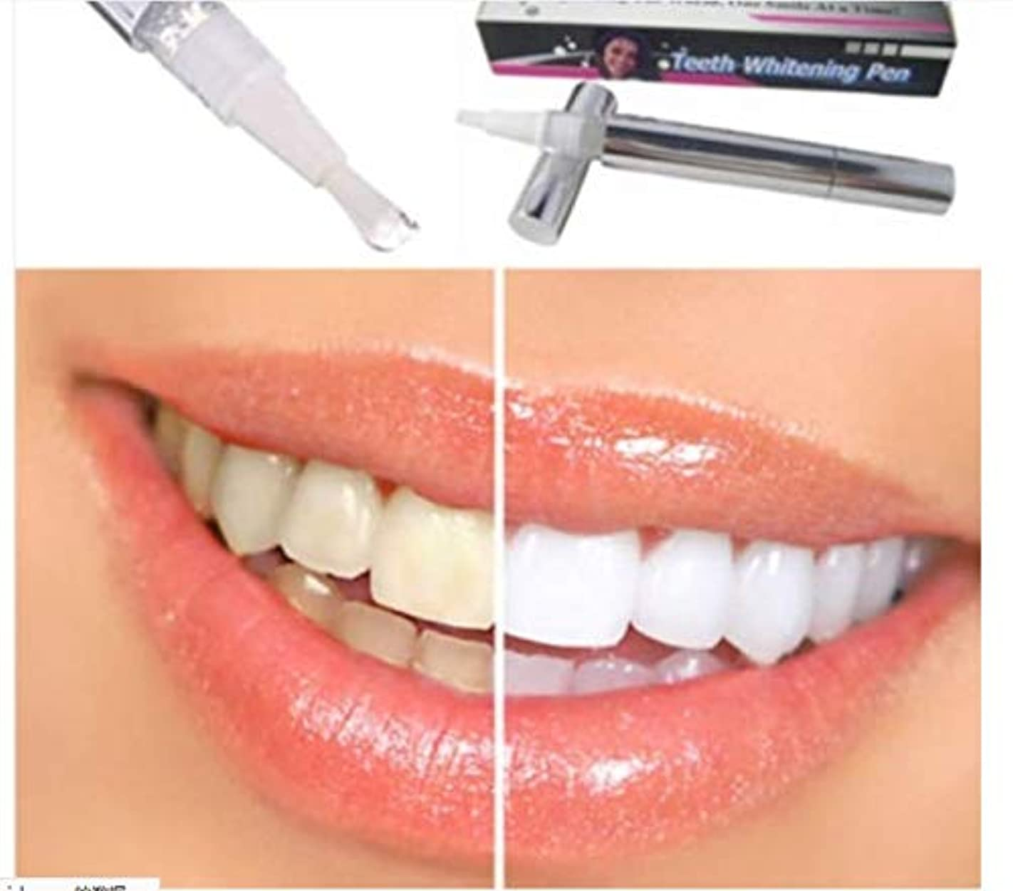 複製するシャンパン密度ホワイトニングペン型真っ白な歯 ホワイトニングペン 歯の白い漂白剤 瞬間汚れ消しゴムリムーバー