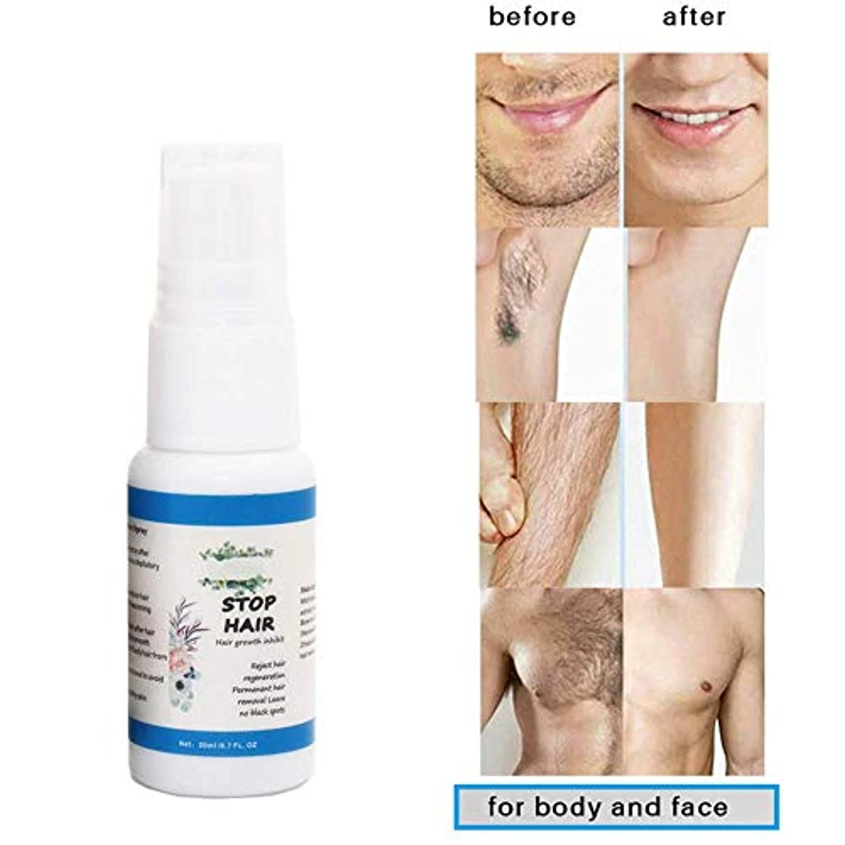 サーマル弾力性のあるスイ脱毛スプレー阻害剤発毛血清発毛除去を防ぎます修理脱毛剤製品ナチュラル非刺激栄養毛穴シュリンク20ml