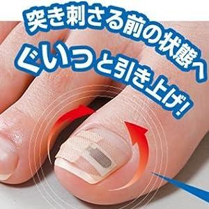 巻き爪リフトシール 1ヶ月ケア 8回分 / 8-4134-01
